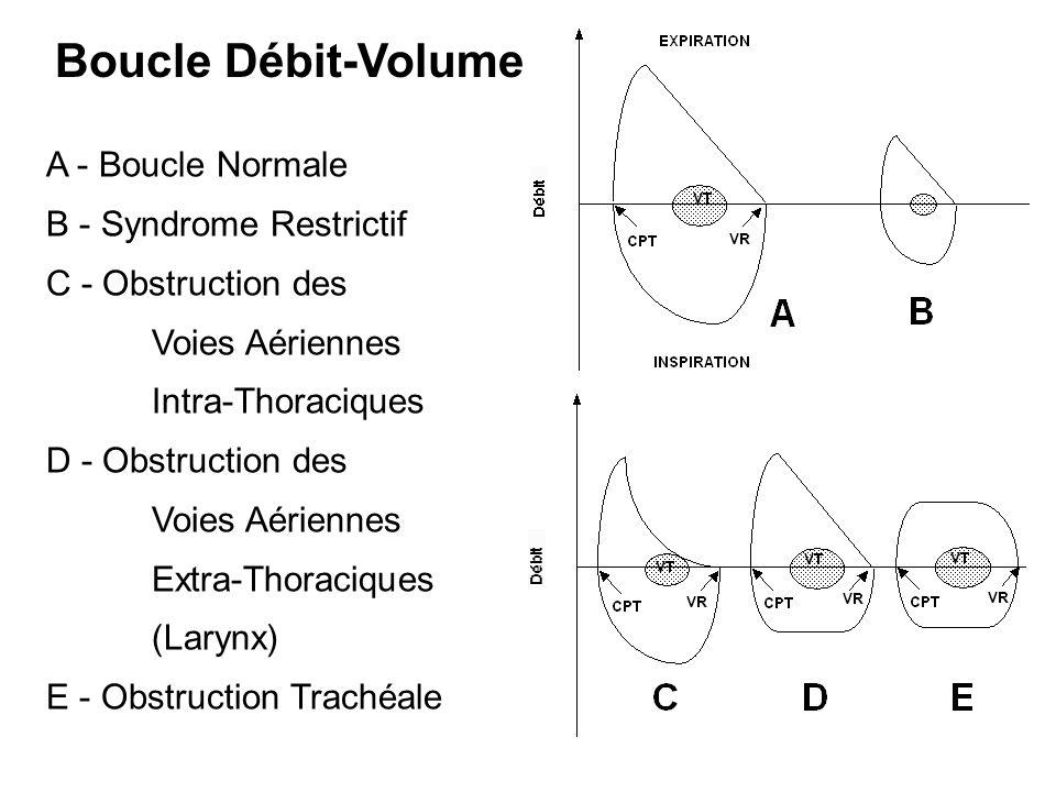 DEFINITION Bronchite Chronique Continuum.