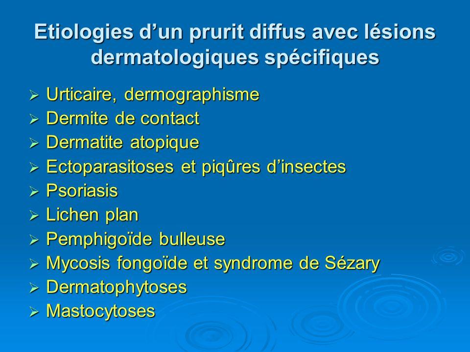Etiologies dun prurit diffus avec lésions dermatologiques spécifiques Urticaire, dermographisme Urticaire, dermographisme Dermite de contact Dermite d