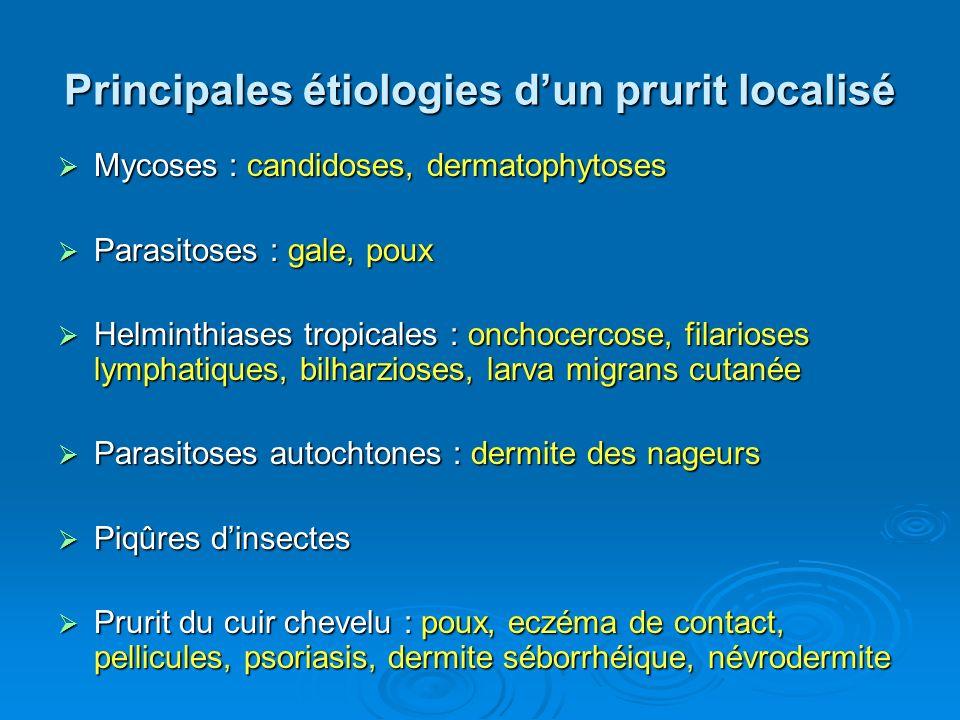 Principales étiologies dun prurit localisé Mycoses : candidoses, dermatophytoses Mycoses : candidoses, dermatophytoses Parasitoses : gale, poux Parasi