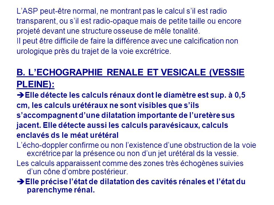 LASP peut-être normal, ne montrant pas le calcul sil est radio transparent, ou sil est radio-opaque mais de petite taille ou encore projeté devant une