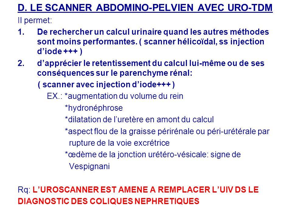 D. LE SCANNER ABDOMINO-PELVIEN AVEC URO-TDM Il permet: 1.De rechercher un calcul urinaire quand les autres méthodes sont moins performantes. ( scanner
