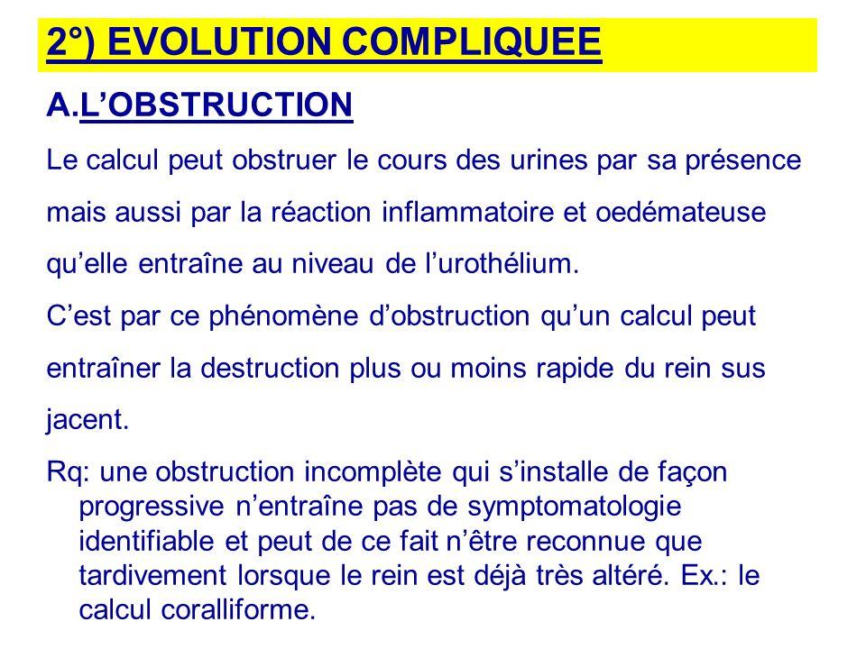 2°) EVOLUTION COMPLIQUEE A.LOBSTRUCTION Le calcul peut obstruer le cours des urines par sa présence mais aussi par la réaction inflammatoire et oedémateuse quelle entraîne au niveau de lurothélium.