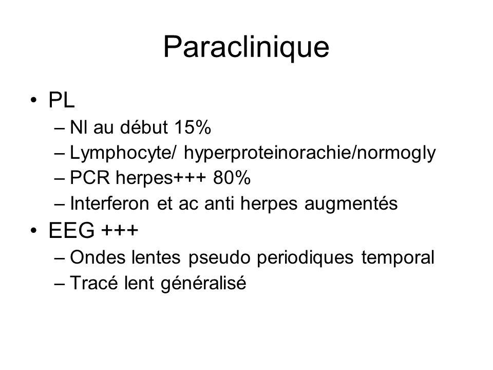 Paraclinique PL –Nl au début 15% –Lymphocyte/ hyperproteinorachie/normogly –PCR herpes+++ 80% –Interferon et ac anti herpes augmentés EEG +++ –Ondes l