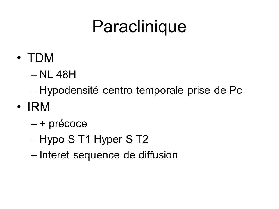 Paraclinique TDM –NL 48H –Hypodensité centro temporale prise de Pc IRM –+ précoce –Hypo S T1 Hyper S T2 –Interet sequence de diffusion