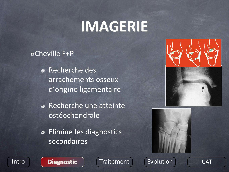 IMAGERIE Cheville F+P Recherche des arrachements osseux dorigine ligamentaire Recherche une atteinte ostéochondrale Elimine les diagnostics secondaire