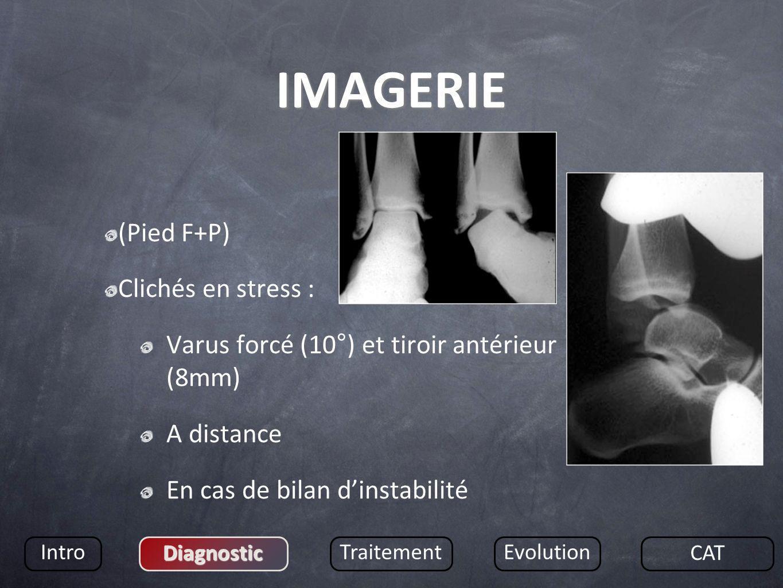 IMAGERIE (Pied F+P) Clichés en stress : Varus forcé (10°) et tiroir antérieur (8mm) A distance En cas de bilan dinstabilité Intro Diagnostic Traitemen