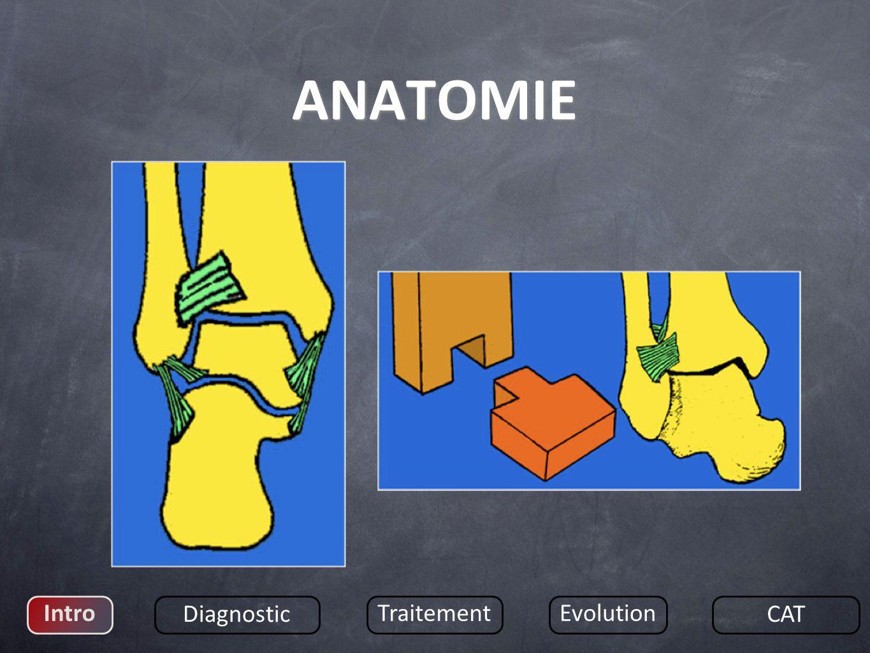3 stades datteintes du ligament : Contention DISTENSION = Entorse bénigne RUPTURE = Entorse grave LLE : très fréquente LLI : rare, souvent avec fracture malléolaire interne Intro Diagnostic TraitementEvolution CAT PHYSIOPATHOLOGIE