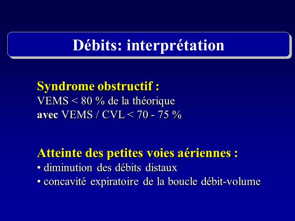 Syndrome obstructif : VEMS < 80 % de la théorique avec VEMS / CVL < 70 - 75 % Syndrome obstructif : VEMS < 80 % de la théorique avec VEMS / CVL < 70 -
