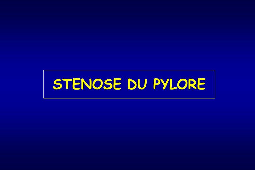 STENOSE DU PYLORE