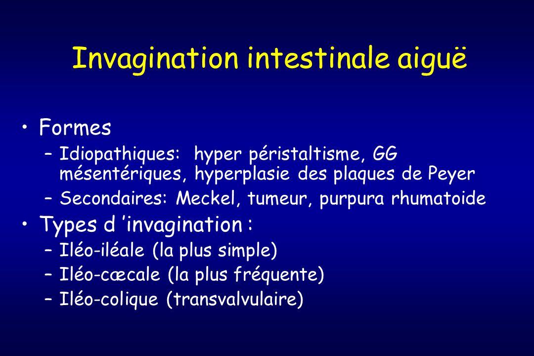 Invagination intestinale aiguë Formes –Idiopathiques: hyper péristaltisme, GG mésentériques, hyperplasie des plaques de Peyer –Secondaires: Meckel, tu