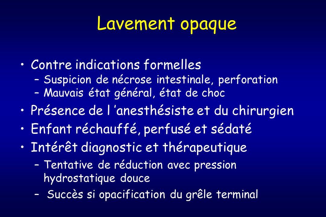 Lavement opaque Contre indications formelles –Suspicion de nécrose intestinale, perforation –Mauvais état général, état de choc Présence de l anesthés