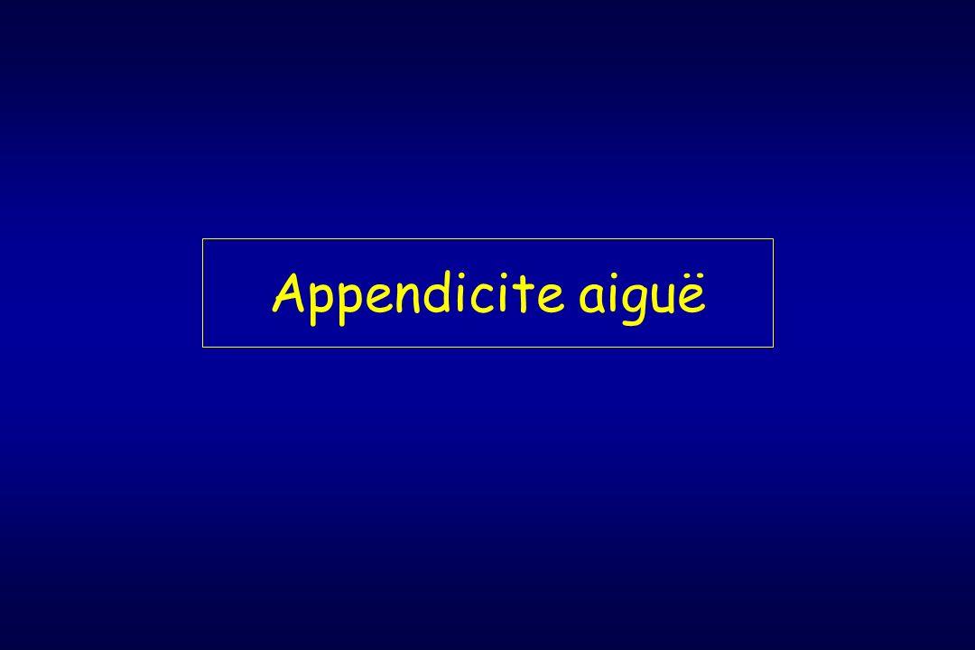 Appendicite aiguë