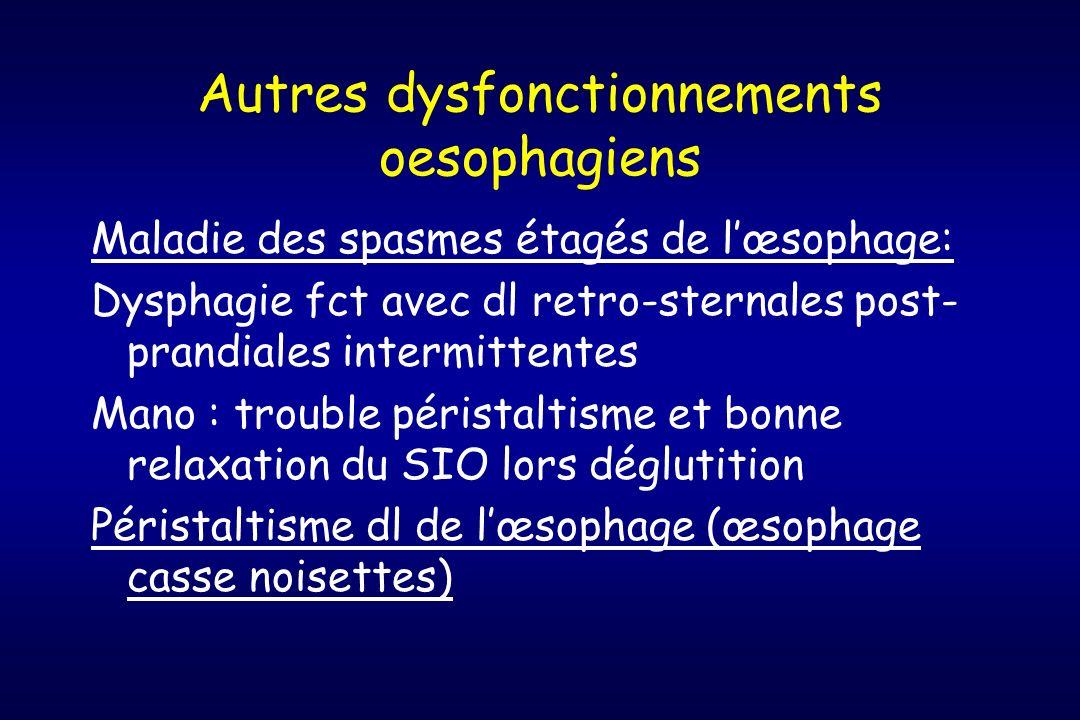 Autres dysfonctionnements oesophagiens Maladie des spasmes étagés de lœsophage: Dysphagie fct avec dl retro-sternales post- prandiales intermittentes