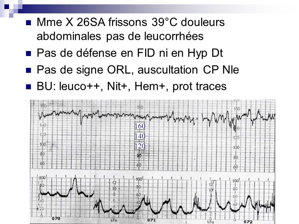 Mme X 26SA frissons 39°C douleurs abdominales pas de leucorrhées Pas de défense en FID ni en Hyp Dt Pas de signe ORL, auscultation CP Nle BU: leuco++,