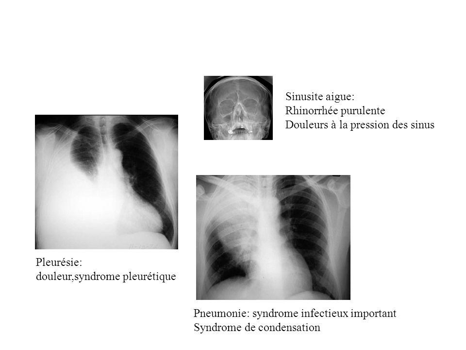 Sinusite aigue: Rhinorrhée purulente Douleurs à la pression des sinus Pleurésie: douleur,syndrome pleurétique Pneumonie: syndrome infectieux important