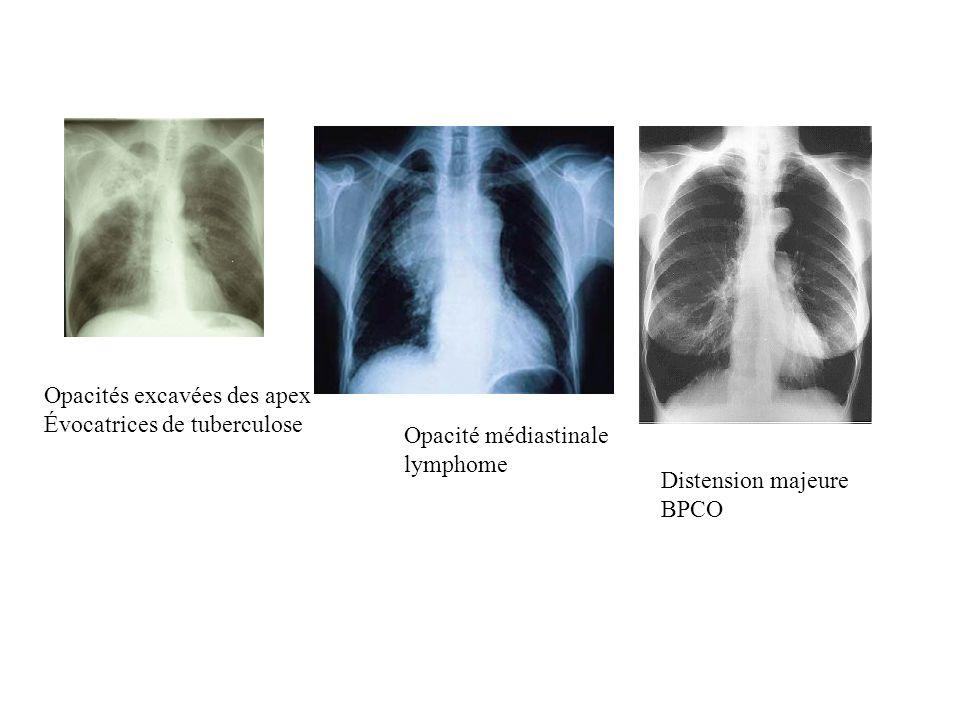 Opacités excavées des apex Évocatrices de tuberculose Opacité médiastinale lymphome Distension majeure BPCO