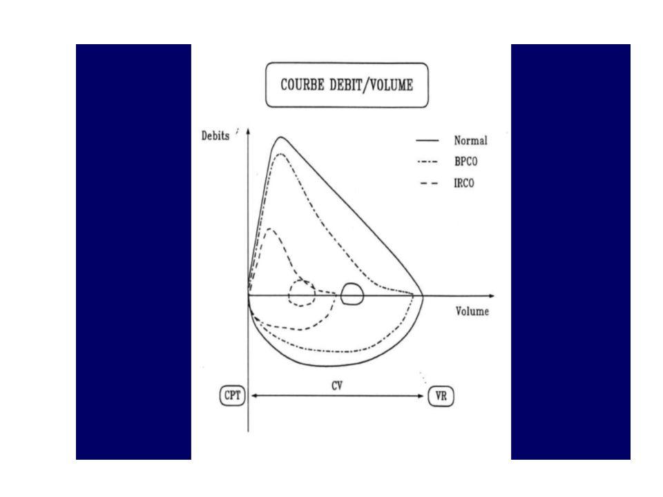 Principales causes de toux chronique Rhinorrhée postérieure + + Reflux gastro-oesophagien (RGO) + + Asthme + + Bronchite chronique (BPCO) Prise dIEC (inhibiteurs de lenzyme de conversion) Dilatations de bronches Coqueluche Tuberculose Tumeurs pulmonaires Tumeurs médiastinales Pneumopathies interstitielles