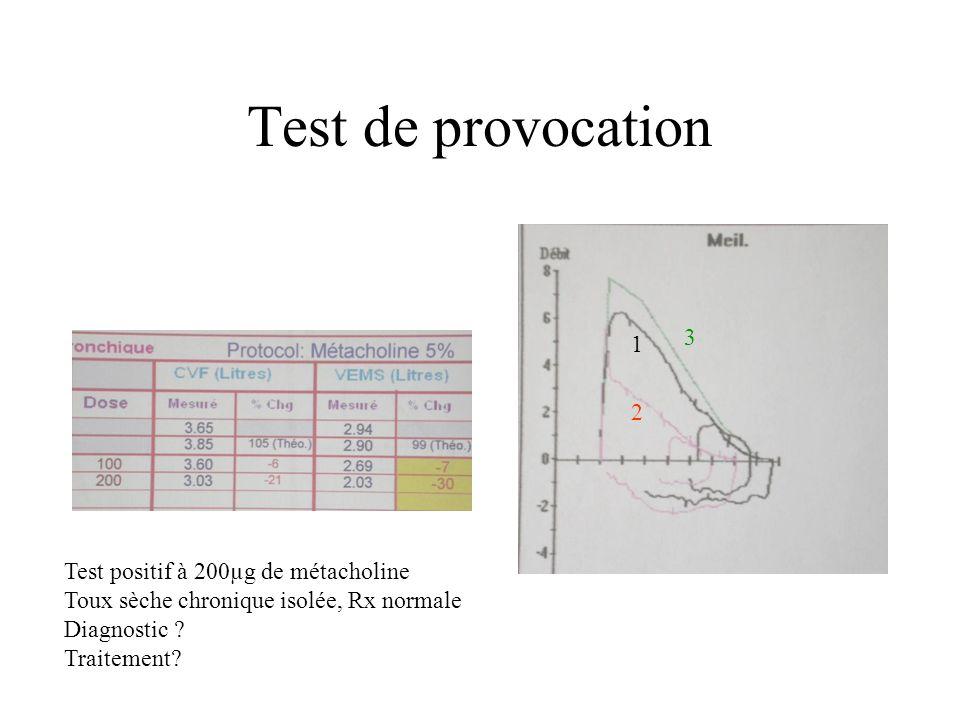 Test de provocation 1 2 3 Test positif à 200µg de métacholine Toux sèche chronique isolée, Rx normale Diagnostic ? Traitement?