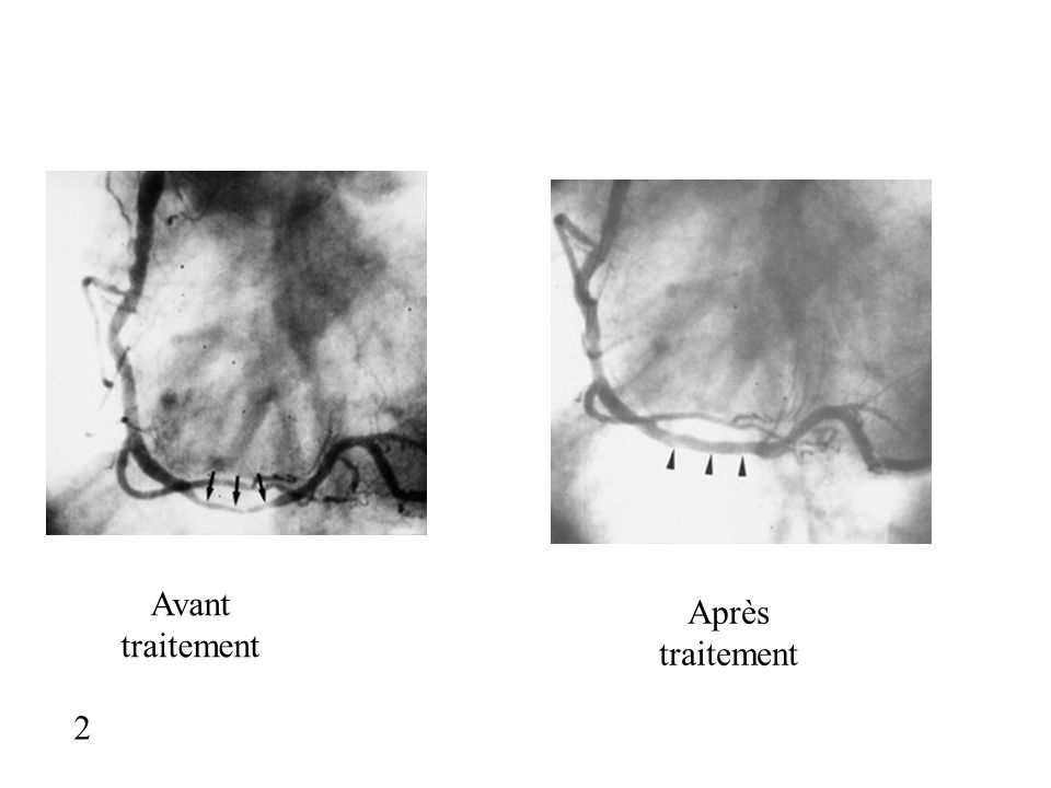 3 Avant traitement Après traitement