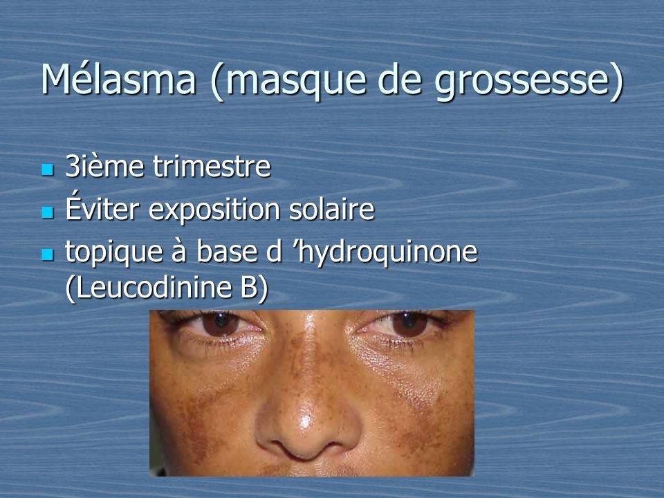 Mélasma (masque de grossesse) 3ième trimestre 3ième trimestre Éviter exposition solaire Éviter exposition solaire topique à base d hydroquinone (Leuco