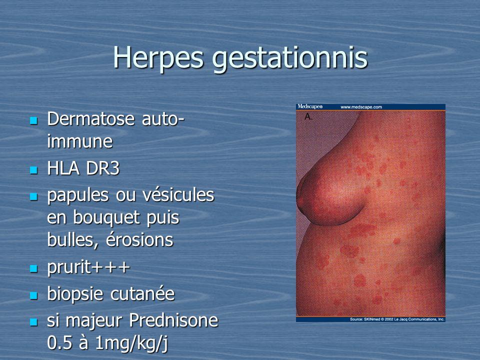 Herpes gestationnis Dermatose auto- immune Dermatose auto- immune HLA DR3 HLA DR3 papules ou vésicules en bouquet puis bulles, érosions papules ou vés