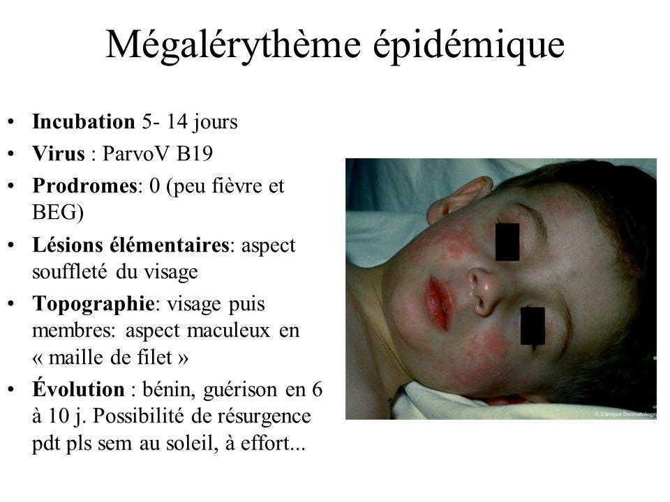 Mégalérythème épidémique Incubation 5- 14 jours Virus : ParvoV B19 Prodromes: 0 (peu fièvre et BEG) Lésions élémentaires: aspect souffleté du visage T