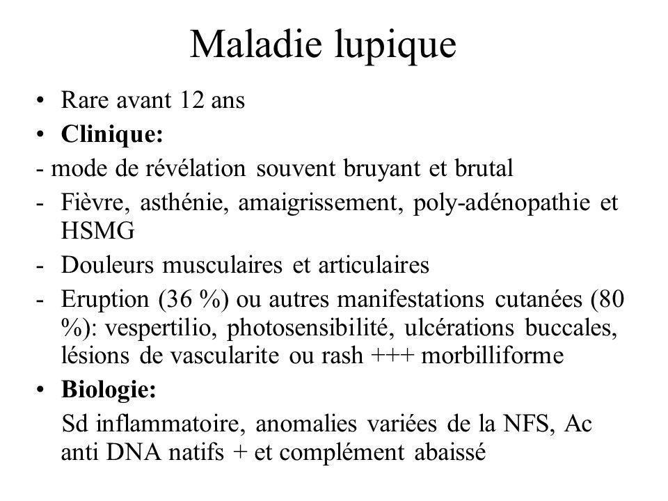 Maladie lupique Rare avant 12 ans Clinique: - mode de révélation souvent bruyant et brutal -Fièvre, asthénie, amaigrissement, poly-adénopathie et HSMG