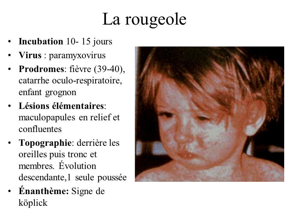 La rougeole Incubation 10- 15 jours Virus : paramyxovirus Prodromes: fièvre (39-40), catarrhe oculo-respiratoire, enfant grognon Lésions élémentaires: