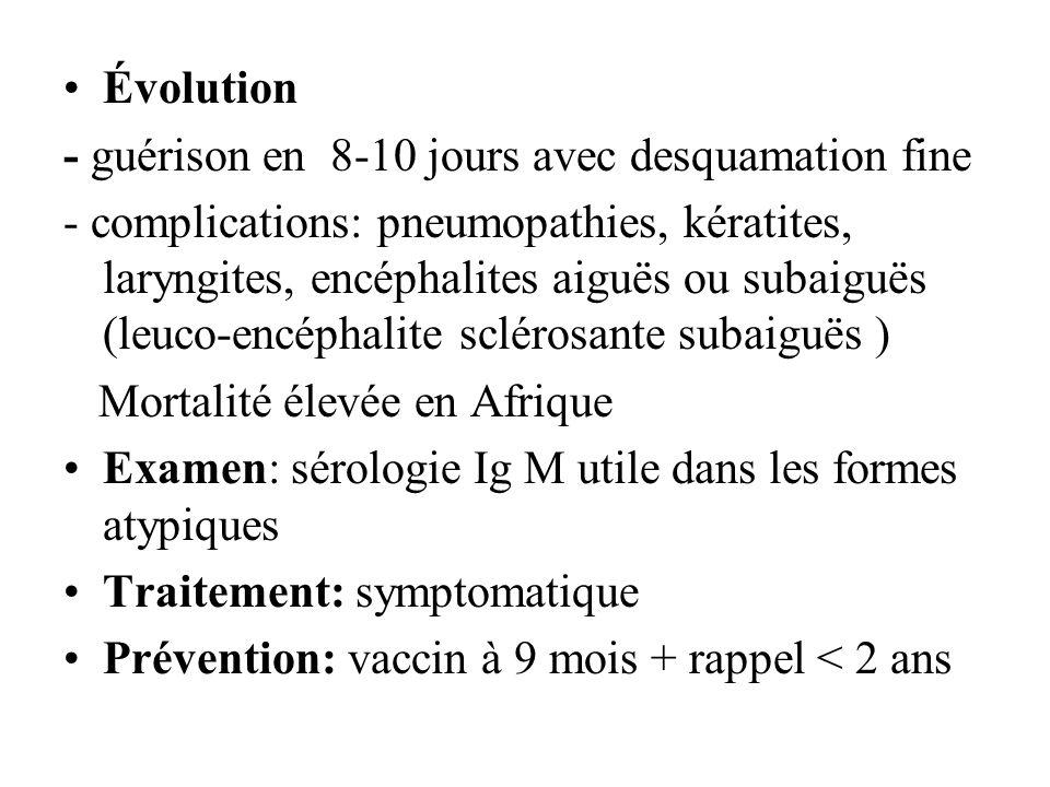 Évolution - guérison en 8-10 jours avec desquamation fine - complications: pneumopathies, kératites, laryngites, encéphalites aiguës ou subaiguës (leu