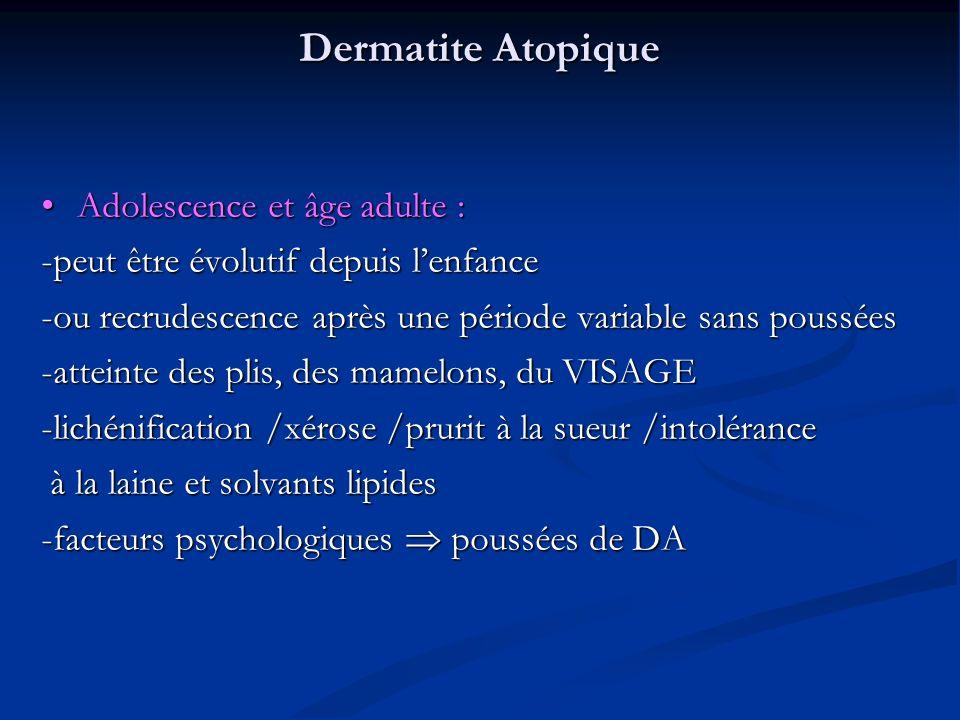 Dermatite Atopique Adolescence et âge adulte : Adolescence et âge adulte : -peut être évolutif depuis lenfance -ou recrudescence après une période variable sans poussées -atteinte des plis, des mamelons, du VISAGE -lichénification /xérose /prurit à la sueur /intolérance à la laine et solvants lipides à la laine et solvants lipides -facteurs psychologiques poussées de DA