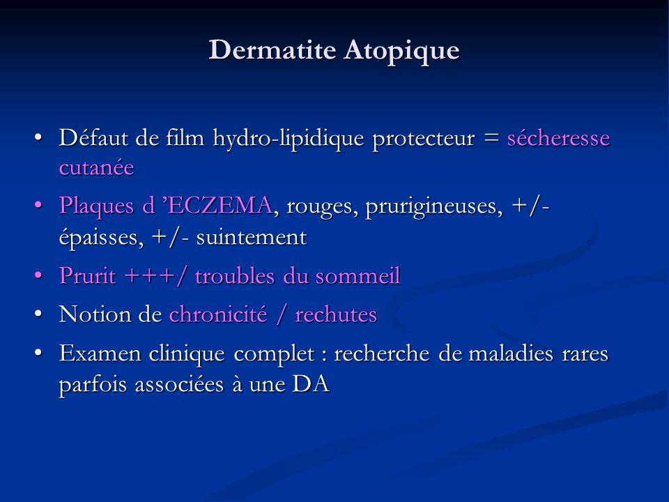 Dermatite Atopique Défaut de film hydro-lipidique protecteur = sécheresse cutanée Défaut de film hydro-lipidique protecteur = sécheresse cutanée Plaques d ECZEMA, rouges, prurigineuses, +/- épaisses, +/- suintement Plaques d ECZEMA, rouges, prurigineuses, +/- épaisses, +/- suintement Prurit +++/ troubles du sommeil Prurit +++/ troubles du sommeil Notion de chronicité / rechutes Notion de chronicité / rechutes Examen clinique complet : recherche de maladies rares parfois associées à une DA Examen clinique complet : recherche de maladies rares parfois associées à une DA