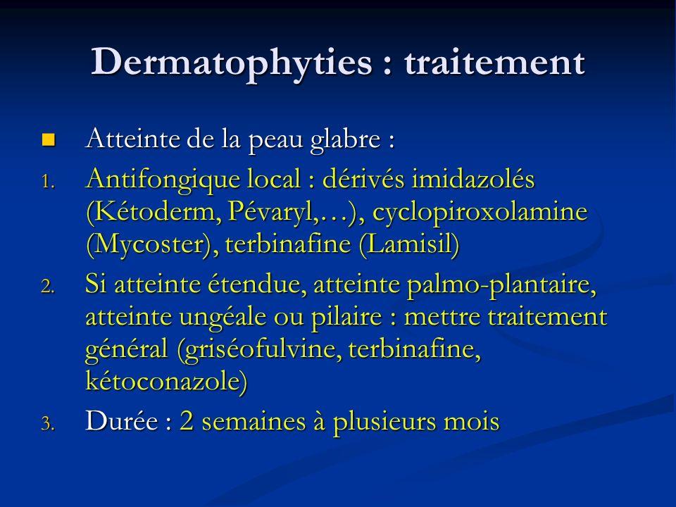 Dermatophyties : traitement Atteinte de la peau glabre : Atteinte de la peau glabre : 1.