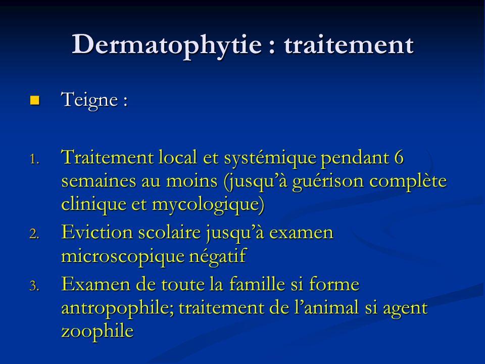 Dermatophytie : traitement Teigne : Teigne : 1.
