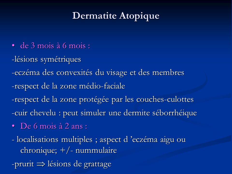 Dermatite Atopique de 3 mois à 6 mois : de 3 mois à 6 mois : -lésions symétriques -eczéma des convexités du visage et des membres -respect de la zone médio-faciale -respect de la zone protégée par les couches-culottes -cuir chevelu : peut simuler une dermite séborrhéique De 6 mois à 2 ans : De 6 mois à 2 ans : - localisations multiples ; aspect d eczéma aigu ou chronique; +/- nummulaire -prurit lésions de grattage
