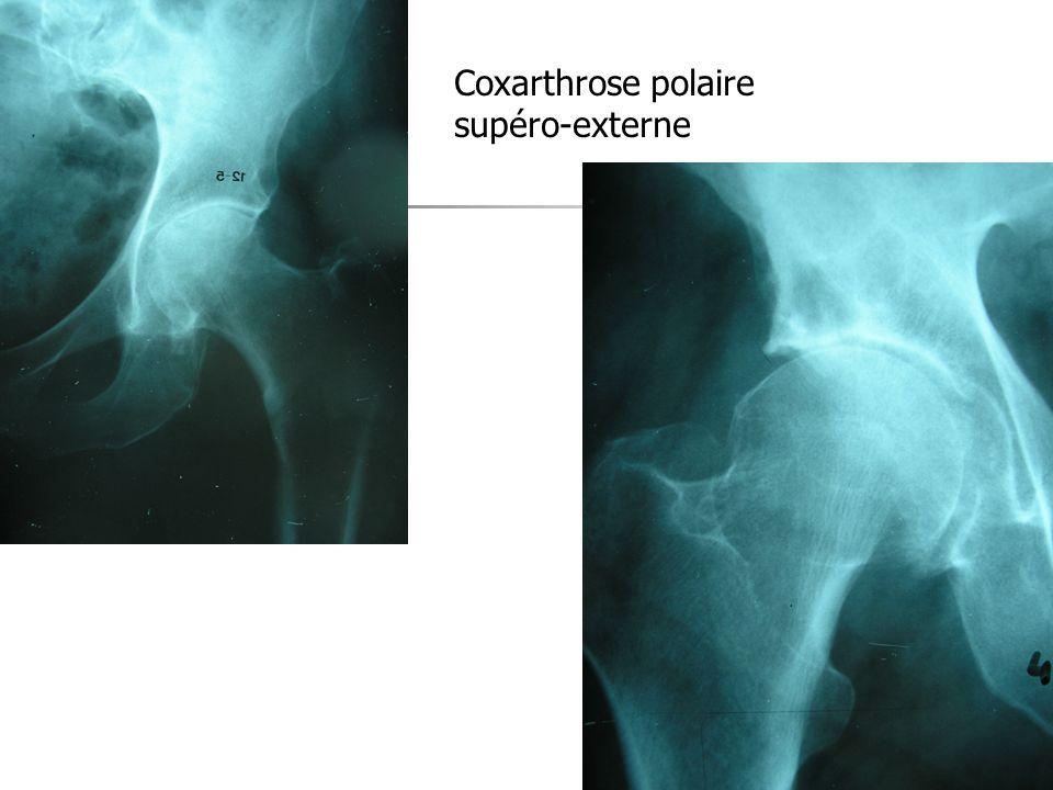 Coxarthrose polaire supéro-externe