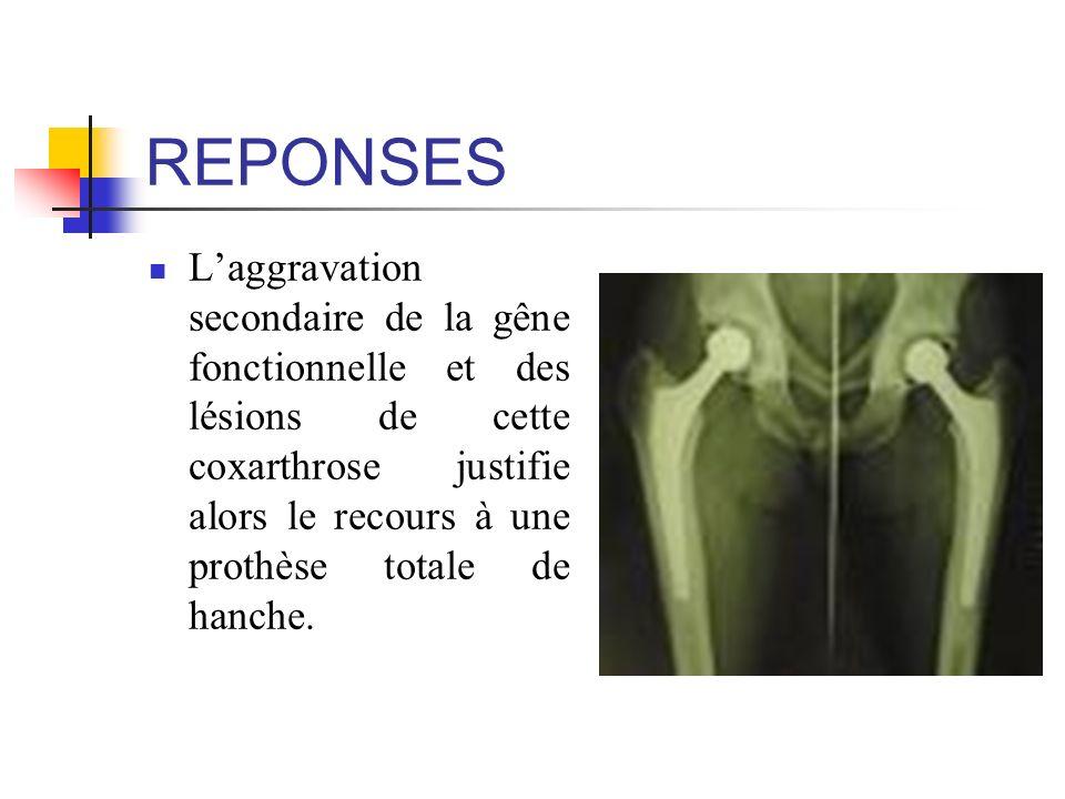REPONSES Laggravation secondaire de la gêne fonctionnelle et des lésions de cette coxarthrose justifie alors le recours à une prothèse totale de hanch