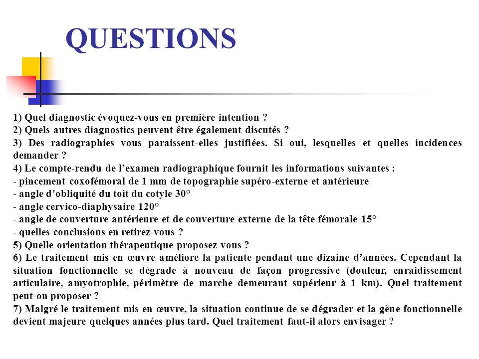 QUESTIONS 1) Quel diagnostic évoquez-vous en première intention ? 2) Quels autres diagnostics peuvent être également discutés ? 3) Des radiographies v