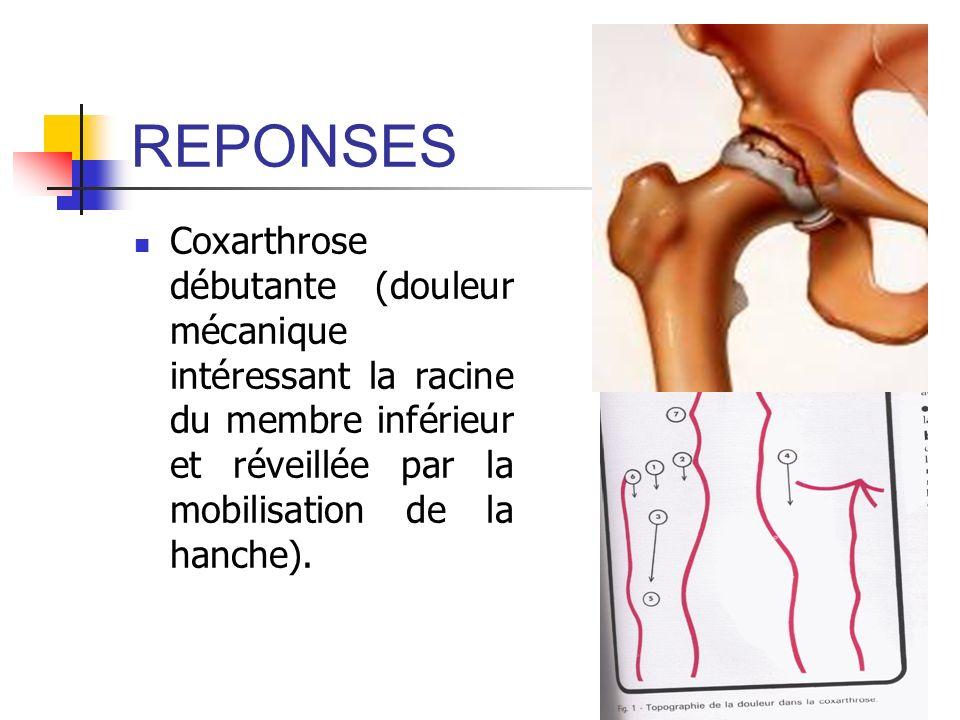 REPONSES Coxarthrose débutante (douleur mécanique intéressant la racine du membre inférieur et réveillée par la mobilisation de la hanche).