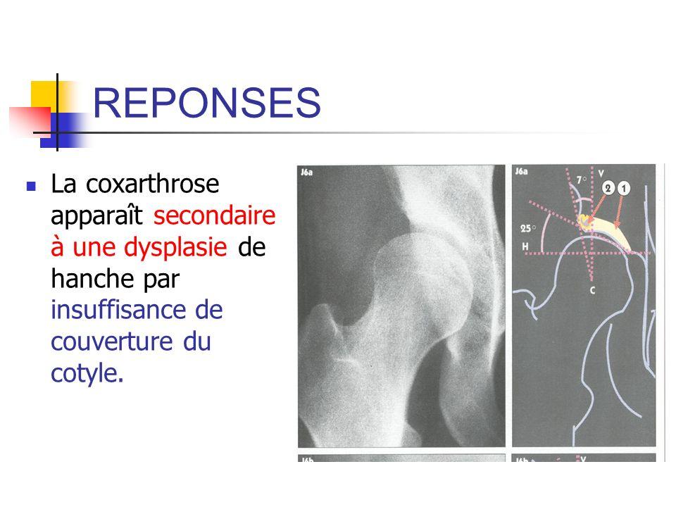 Coxométrie de hanche
