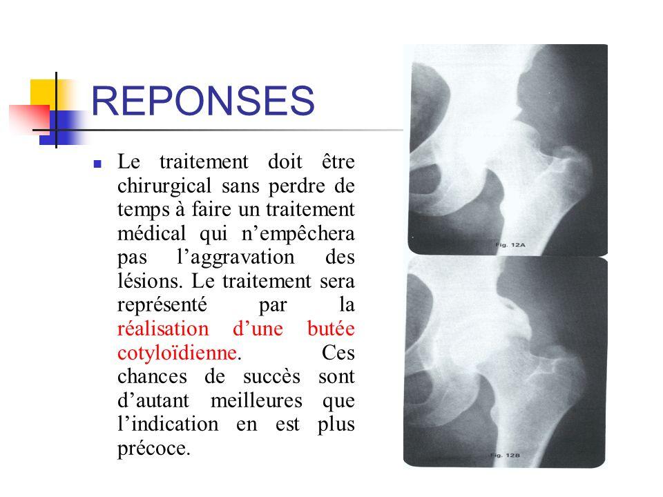REPONSES Le traitement doit être chirurgical sans perdre de temps à faire un traitement médical qui nempêchera pas laggravation des lésions. Le traite