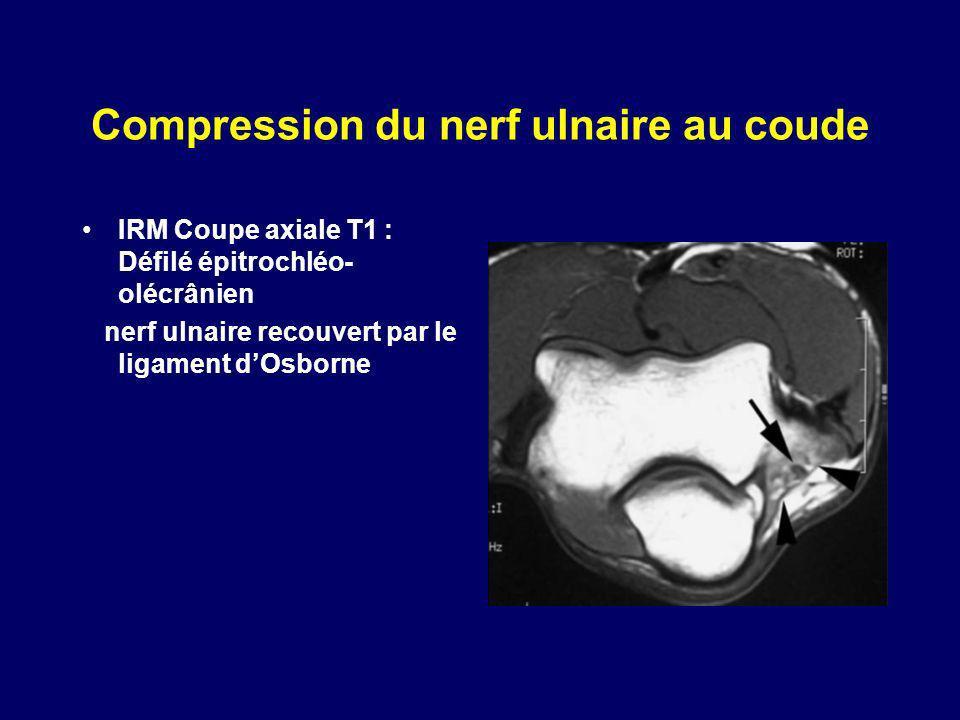Compression du nerf ulnaire au coude IRM Coupe axiale T1 : Défilé épitrochléo- olécrânien nerf ulnaire recouvert par le ligament dOsborne