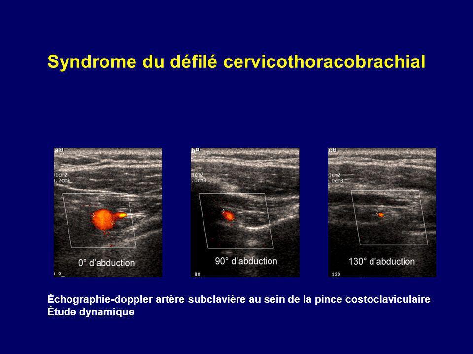 Syndrome du défilé cervicothoracobrachial Échographie-doppler artère subclavière au sein de la pince costoclaviculaire Étude dynamique