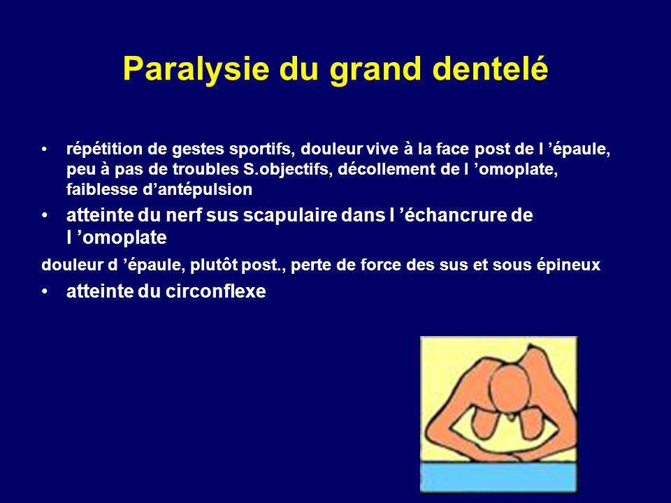 Paralysie du grand dentelé répétition de gestes sportifs, douleur vive à la face post de l épaule, peu à pas de troubles S.objectifs, décollement de l
