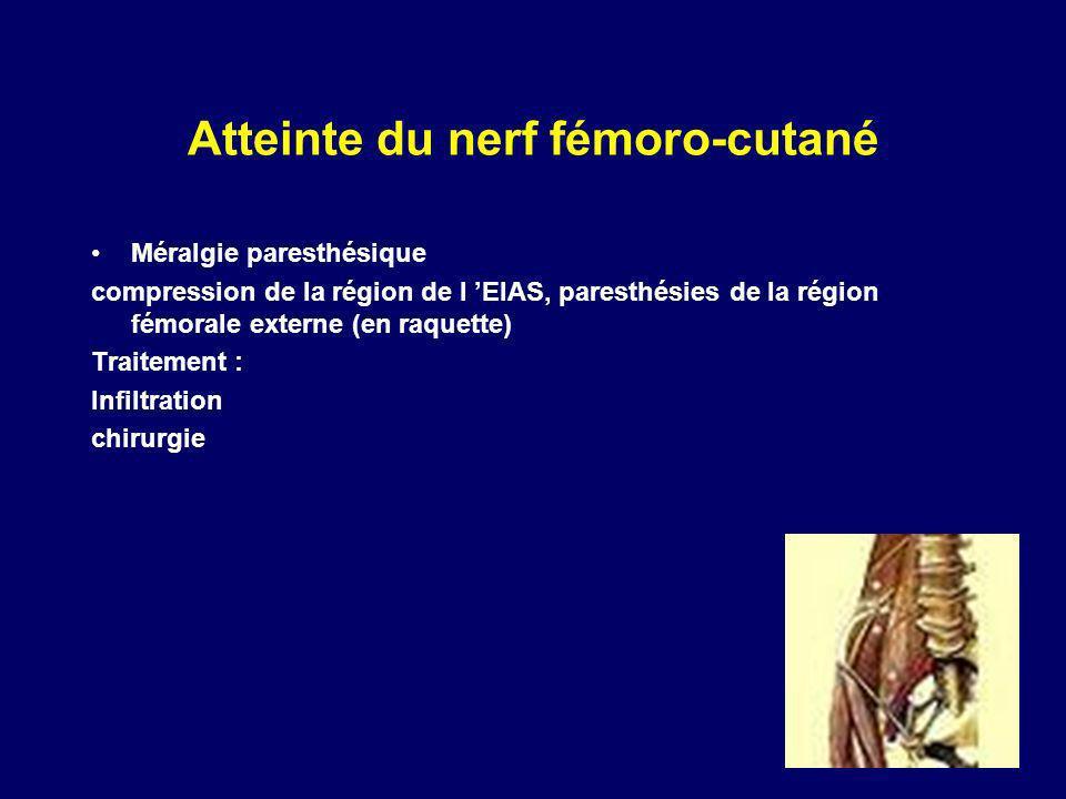 Atteinte du nerf fémoro-cutané Méralgie paresthésique compression de la région de l EIAS, paresthésies de la région fémorale externe (en raquette) Tra