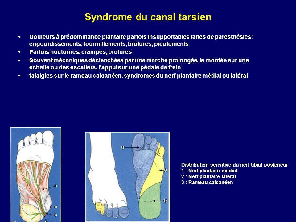 Syndrome du canal tarsien Douleurs à prédominance plantaire parfois insupportables faites de paresthésies : engourdissements, fourmillements, brûlures