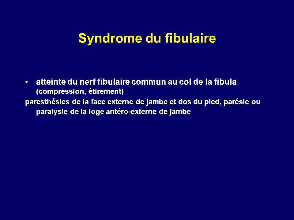 Syndrome du fibulaire atteinte du nerf fibulaire commun au col de la fibula (compression, étirement) paresthésies de la face externe de jambe et dos d