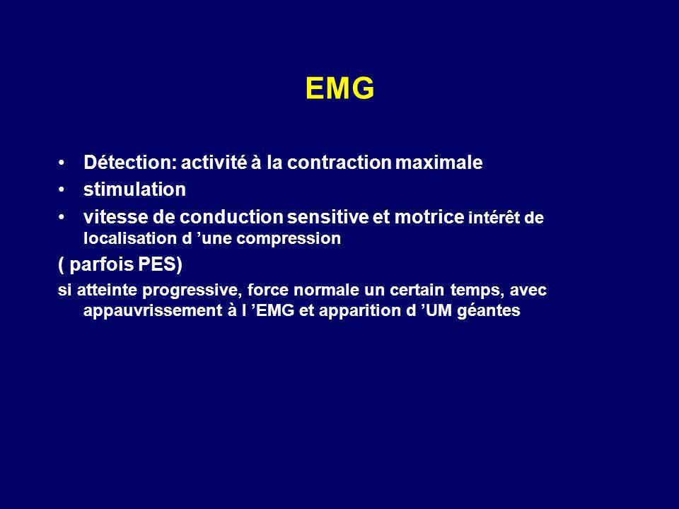 EMG Détection: activité à la contraction maximale stimulation vitesse de conduction sensitive et motrice intérêt de localisation d une compression ( p