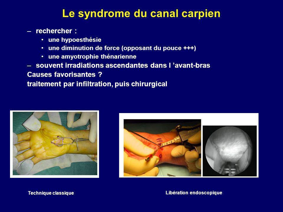 Le syndrome du canal carpien –rechercher : une hypoesthésie une diminution de force (opposant du pouce +++) une amyotrophie thénarienne –souvent irrad