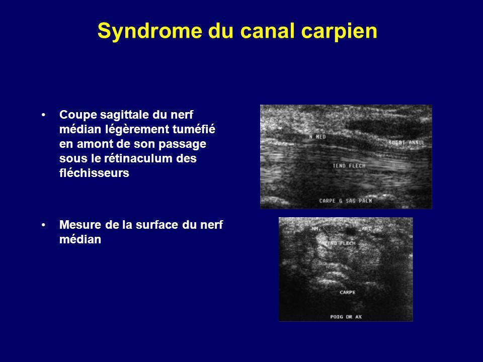 Syndrome du canal carpien Coupe sagittale du nerf médian légèrement tuméfié en amont de son passage sous le rétinaculum des fléchisseurs Mesure de la