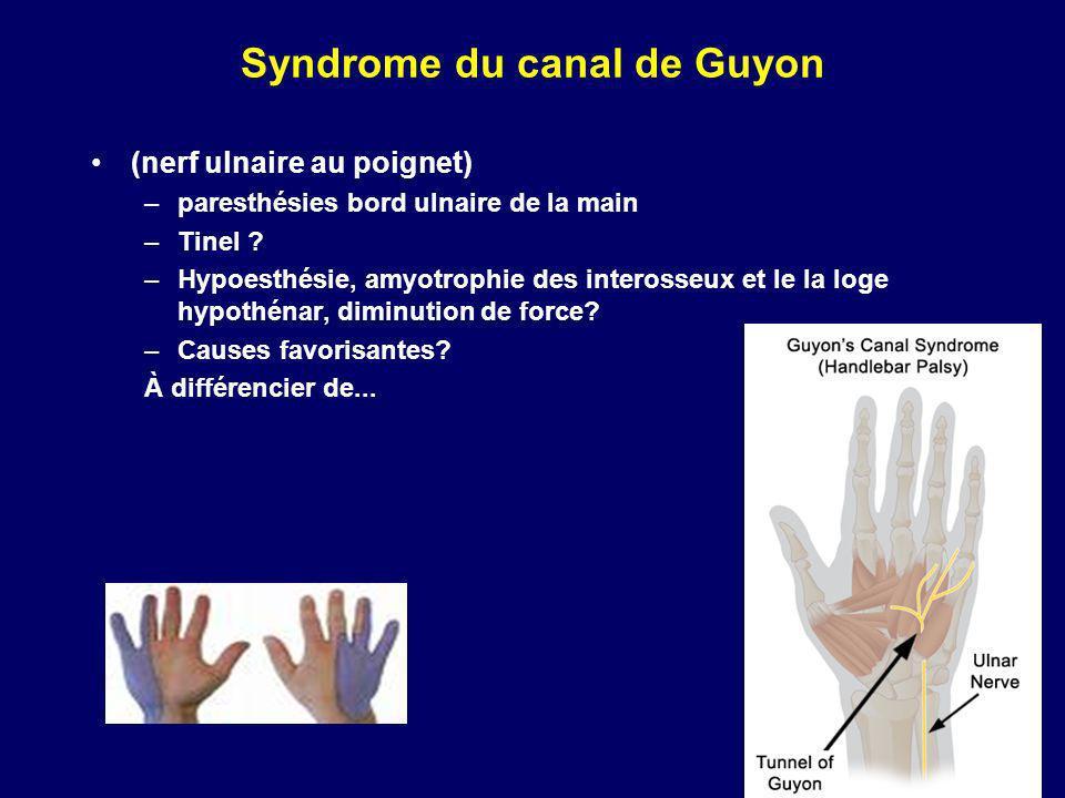 Syndrome du canal de Guyon (nerf ulnaire au poignet) –paresthésies bord ulnaire de la main –Tinel ? –Hypoesthésie, amyotrophie des interosseux et le l